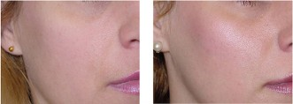 Cheek filler works instantly and givess a youthful mid face.
