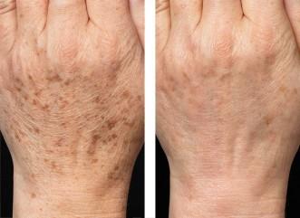 Laser Hand Rejuvenation