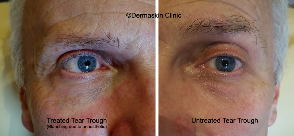 Tear Trough Fillers In Cardiff Bristol Manchester Under