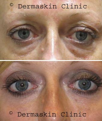 Tear Trough Filler Before and After
