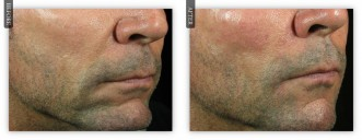 Chin Augmemtation Using Dermal Filler