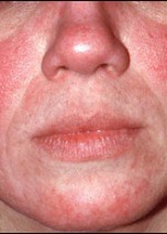 Rosacea - Seeking the right treatments