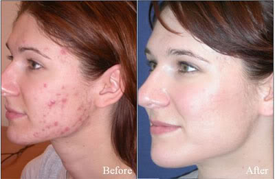 Tretinoin Treatment for sun damage and UV damage at