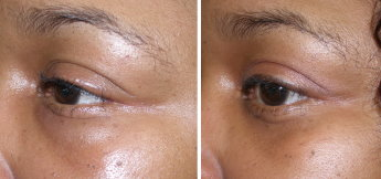 Dermal Filler Correction Cardiff Skin Fillers Correction