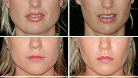 Botox for Jaw Muscle