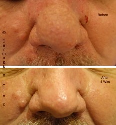 Rhinophyma Treatment