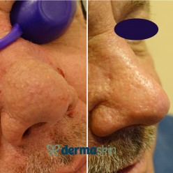 Rhinophyma Laser Treatment
