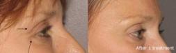Botox (Dysport, Vistabel)