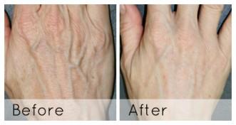 Dermal Fillers for the Hands
