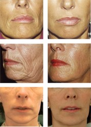 Before and After Pictures Using Sculptra