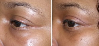 Dermal filler correction and dissolving