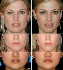 Botox for Masseter / Jaw Reduction