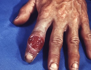 Syphilis of the hands
