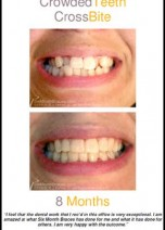 Perfect Smiles All Around With Powerprox Braces at Dermaskin Cardiff