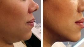 Aqualyx® Fat Dissolving Injections