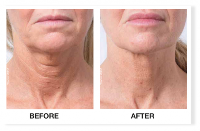 Profhilo Treatment for the Neck